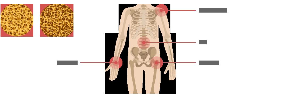 상관골와과경부, 척추, 대퇴골겨부, 요골원위부